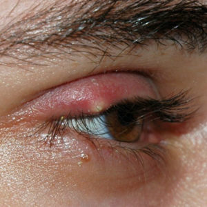 Stye Symptoms and Treatment
