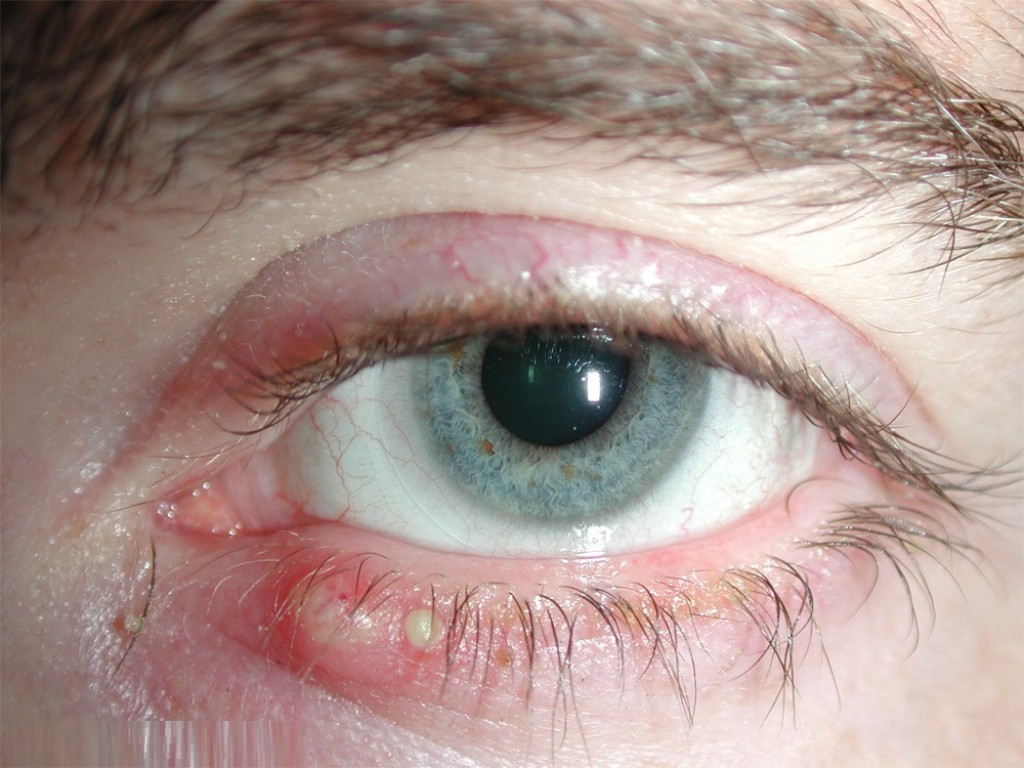 Blepharitis: A troublesome journey of eye